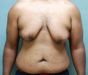 manhattan gynecomastia surgery before 1